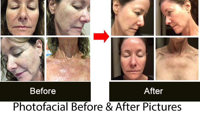 photofacial before after